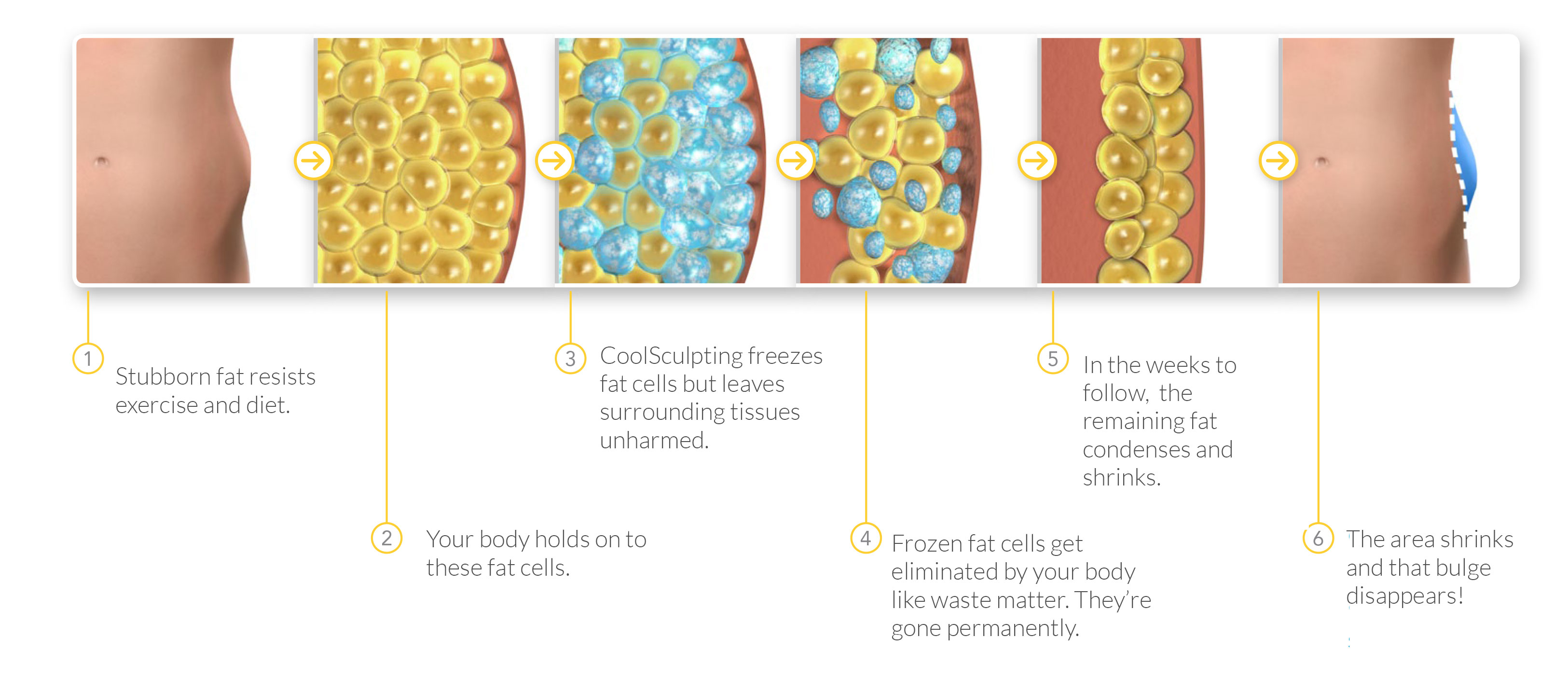 How-Coolsculpting-Works-diagram