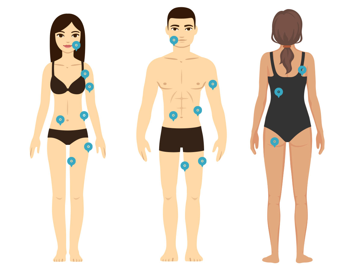 coolsculpting toronto body diagram