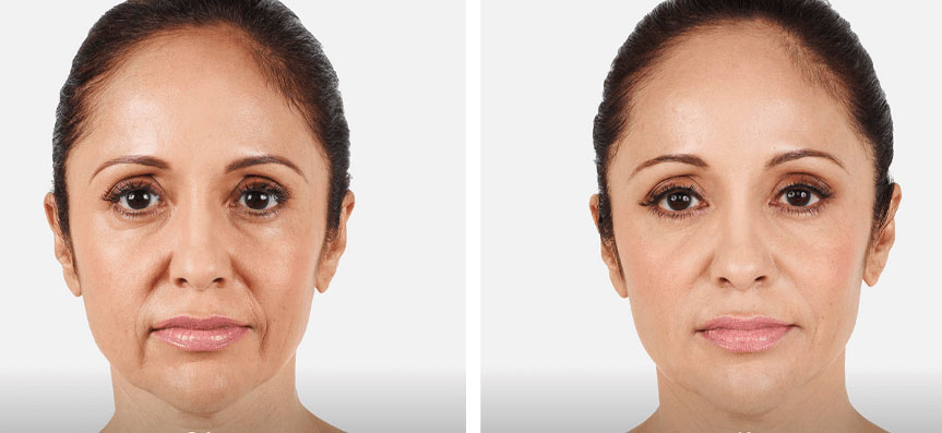 before and after fillers toronto