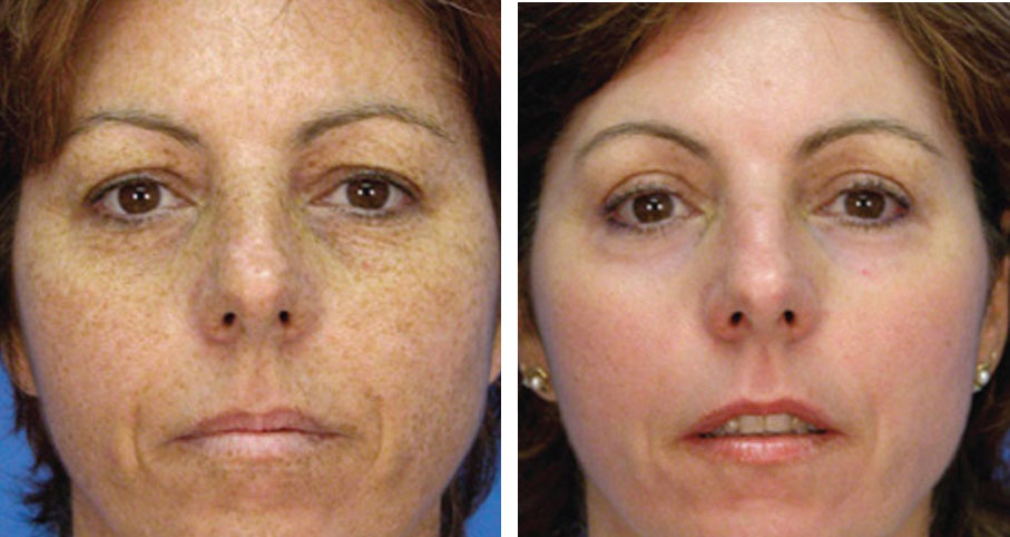 before and after photofacial toronto