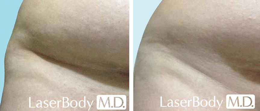 before and after coolsculpting toronto