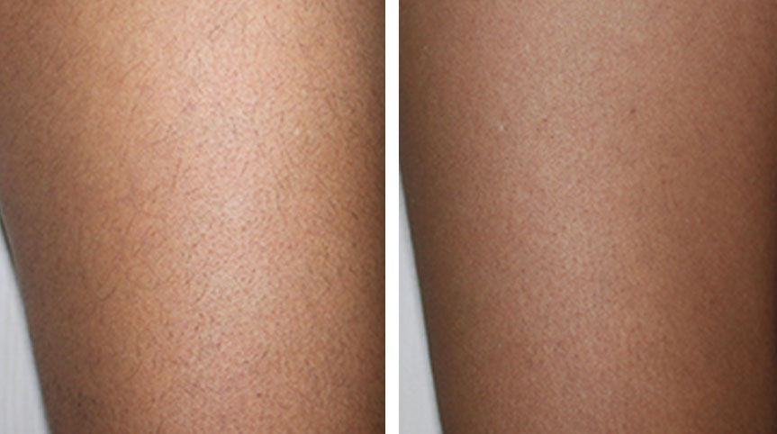 before and after laser hair removal toronto