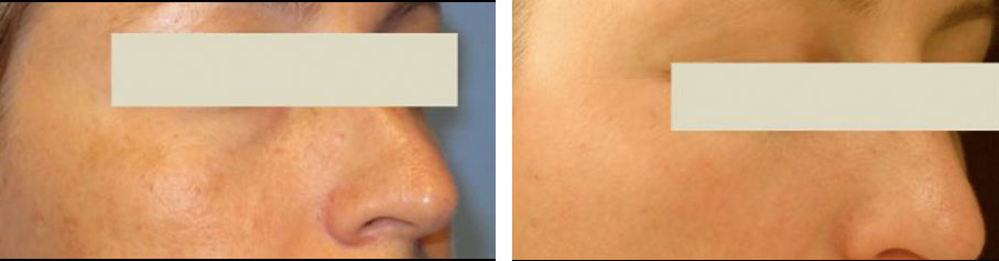 before and after vivier skincare toronto