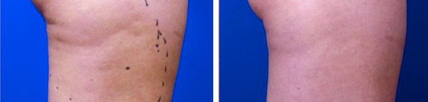 before and after cellulite treatment toronto