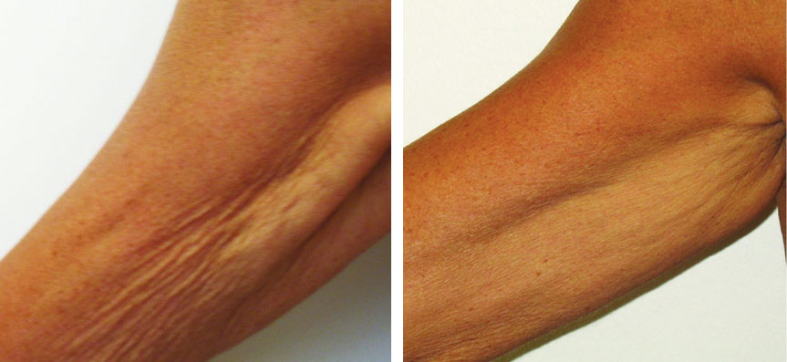 before and after skin tightening toronto